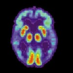 Alzheimer Brain Scan