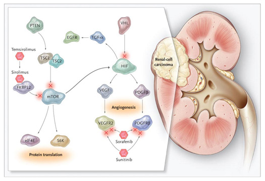Kidney Cancer and renal system